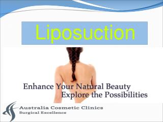 Liposuction – A Procedure/Treatment to get Rid of Extra Fat