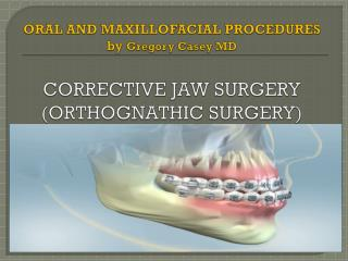Corrective Jaw Surgery by Dr. Gregory Casey