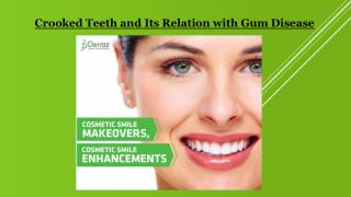 Crooked Teeth and Its Relation with Gum Disease