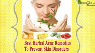 Best Herbal Acne Remedies To Prevent Skin Disorders