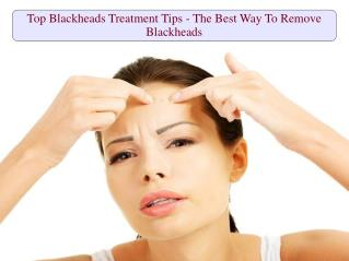 Top Blackheads Treatment Tips - The Best Way To Remove Blackheads