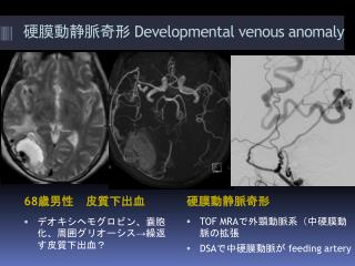 Developmental venous anomaly