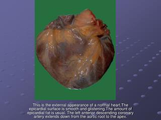 This is the external appearance of a normal heart.The epicardial surface is smooth and glistening.The amount of epicardi