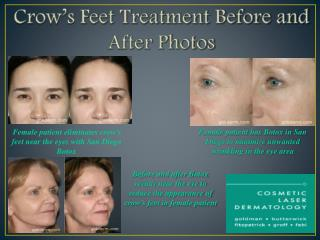 Before And After Botox San Diego