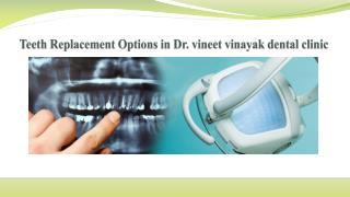 Teeth Replacement Options in Dr  vineet vinayak dental clinic