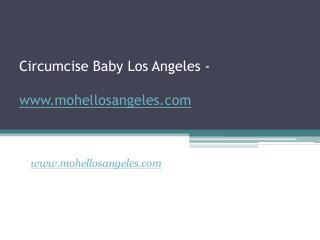 Circumcise Baby Los Angeles - www.mohellosangeles.com
