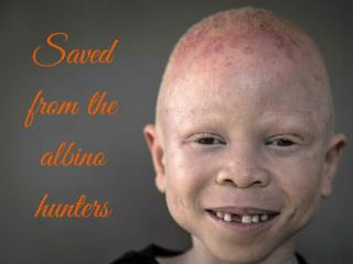 Saved  from the albino hunters