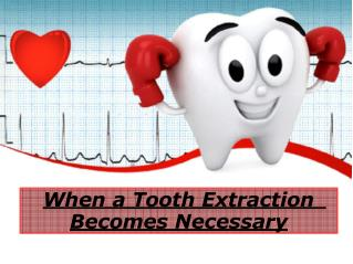 When a Tooth Extraction Becomes Necessary