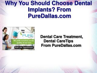 Why You Should Choose Dental Implants