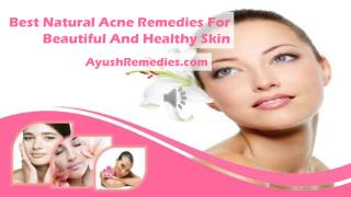 Best Natural Acne Remedies For Beautiful And Healthy Skin