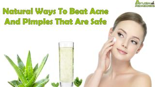 Natural Ways To Beat Acne And Pimples That Are Safe