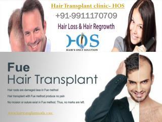Hair Transplant clinic- HOS 9911170709