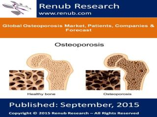 Global Osteoporosis Market, Patients, Companies & Forecast