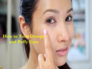 Blepharoplasty | Eyelid Lif Surgery | Dr. Sebastian Torres