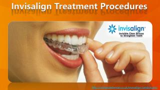 Invisalign treatment procedures - get straighten teeth