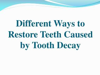 Different Ways to Restore Teeth Caused by Tooth Decay