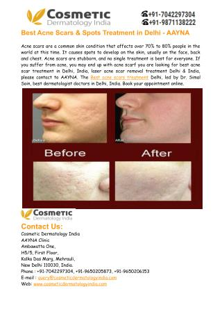 Best Acne Scars Treatment Delhi India – Aayna Clinic
