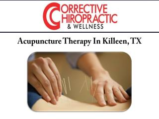 Acupuncture Therapy In Killeen, TX