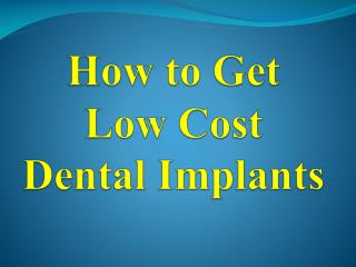 How to Get Low Cost Dental Implants
