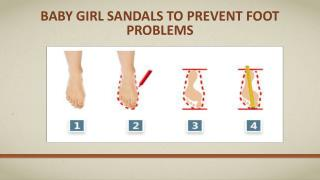 Baby girl sandals to prevent foot problems