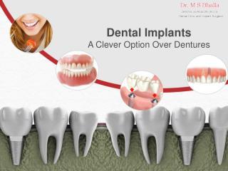 Dental Implants - A Clever Option Over Dentures