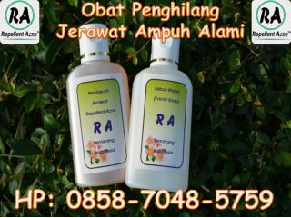 Obat Jerawat batu Alami Ampuh 085-870-485-759