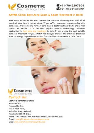 Best Acne Scars Treatment in Delhi India � Aayna Clinic