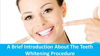 A Brief Introduction About The Teeth Whitening Procedure