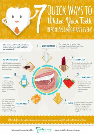 7 Quick Ways to Whiten Your Teeth