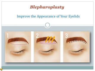 What is Eyelid Surgery Blepharoplasty