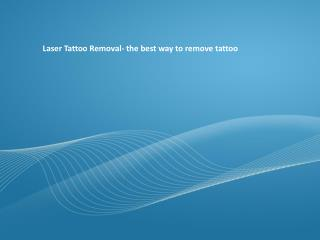 Laser Tattoo Removal- the best way to remove tattoo