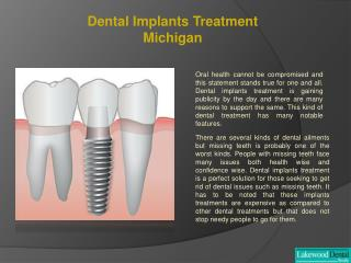 Dental implant specialist Michigan