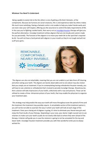 Invisalign houston