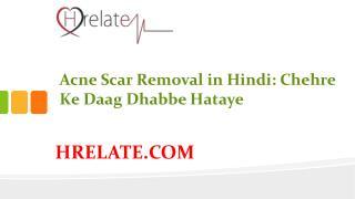 Acne Scar Removal in Hindi: Hataye Chehre Ke Daag Dhabbe