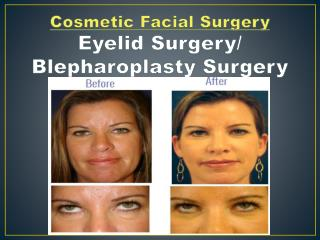 Eyelid Surgery �Dr. Gregory Casey