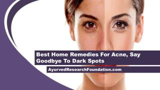 Best Home Remedies For Acne, Say Goodbye To Dark Spots