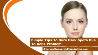 Simple Tips To Cure Dark Spots Due To Acne Problem