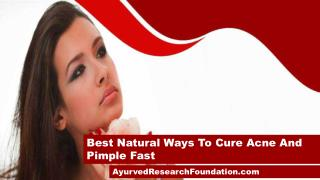 Best Natural Ways To Cure Acne And Pimple Fast