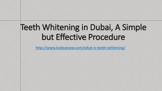 Teeth Whitening in Dubai, A Simple but Effective Procedure