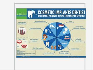 Cosmetic Implants Dentist Offered Low Cost Affordable Dental Treatments