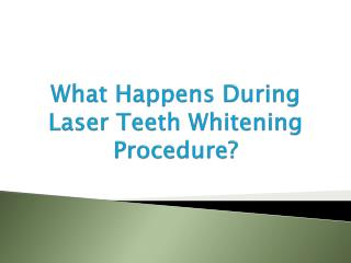 What Happens During Laser Teeth Whitening Procedure?