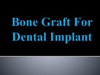 Bone Graft For Dental Implant