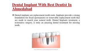 Dental implant with best dentist in ahmedabad