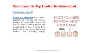 Root canal by top dentist in ahmedabad