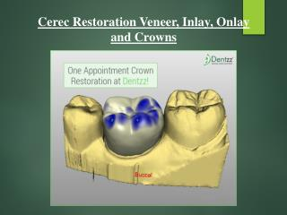 Cerec Restoration at Dentzz