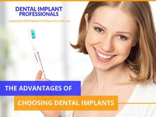 Advantages of Choosing Dental Implants