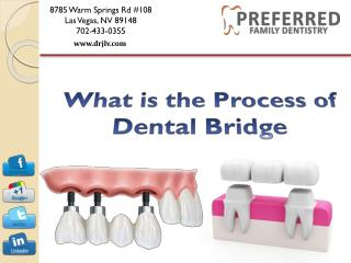 What is the Process of Dental Bridge - Preferred Family Dentistry