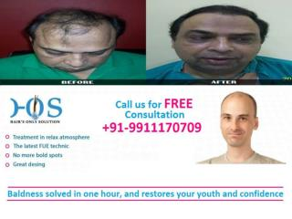 Pain Less Hair Transplantation in Delhi