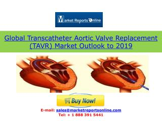 Global TAVR (Transcatheter Aortic Valve Replacement) Market 2019: Growth Drivers, Forecasts and Trends Featuring Edwards