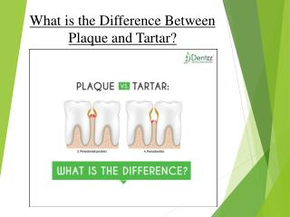 What is the Difference Between Plaque and Tartar